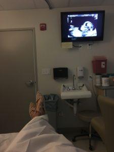 Meredith Kessler Triathlete Sonogram Baby Boy